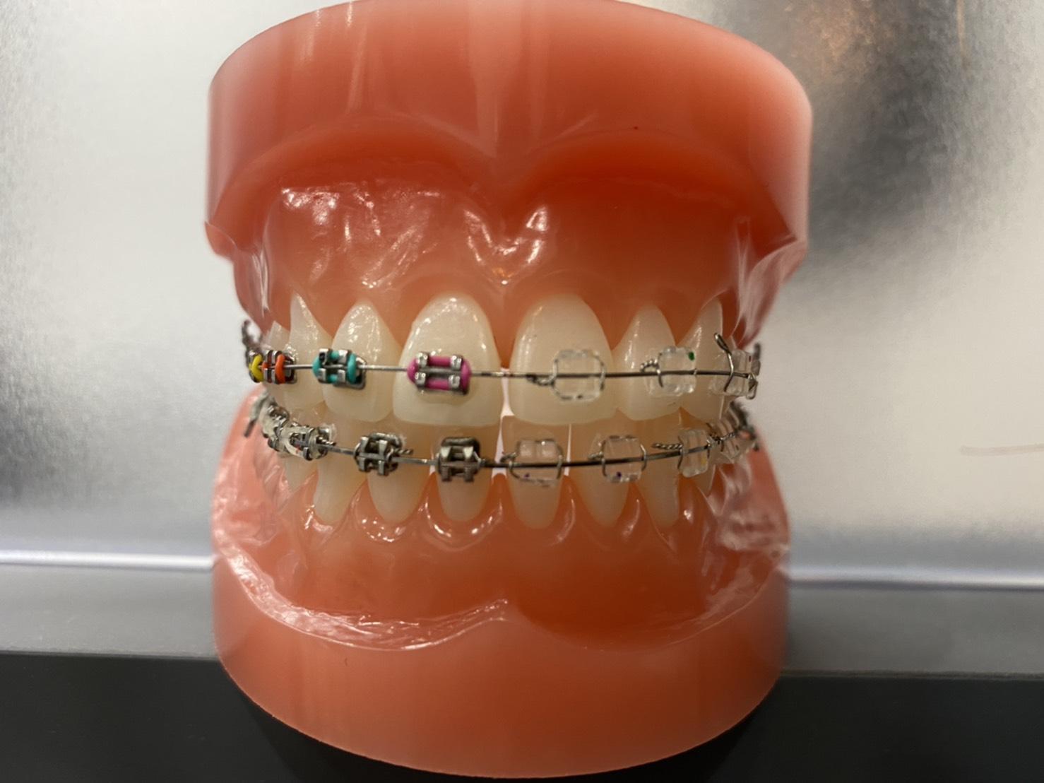 歯科矯正『ブラケット矯正』は目立つ