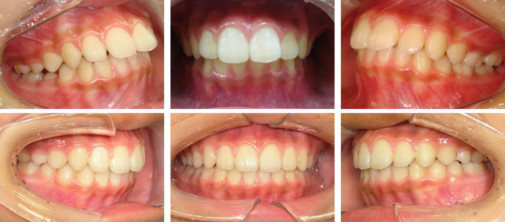 子どもの出っ歯の矯正治療例