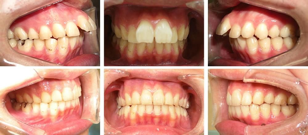 出っ歯(上顎前突)の大人の矯正  東京三鷹の三鷹miki矯正歯科