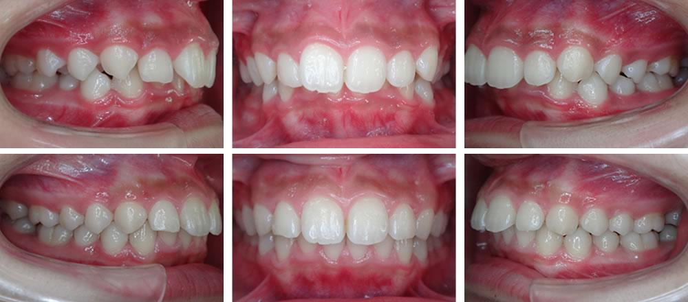 過蓋咬合の矯正治療例