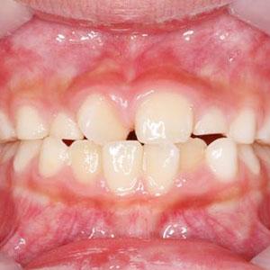 子供の八重歯・叢生の矯正治療例