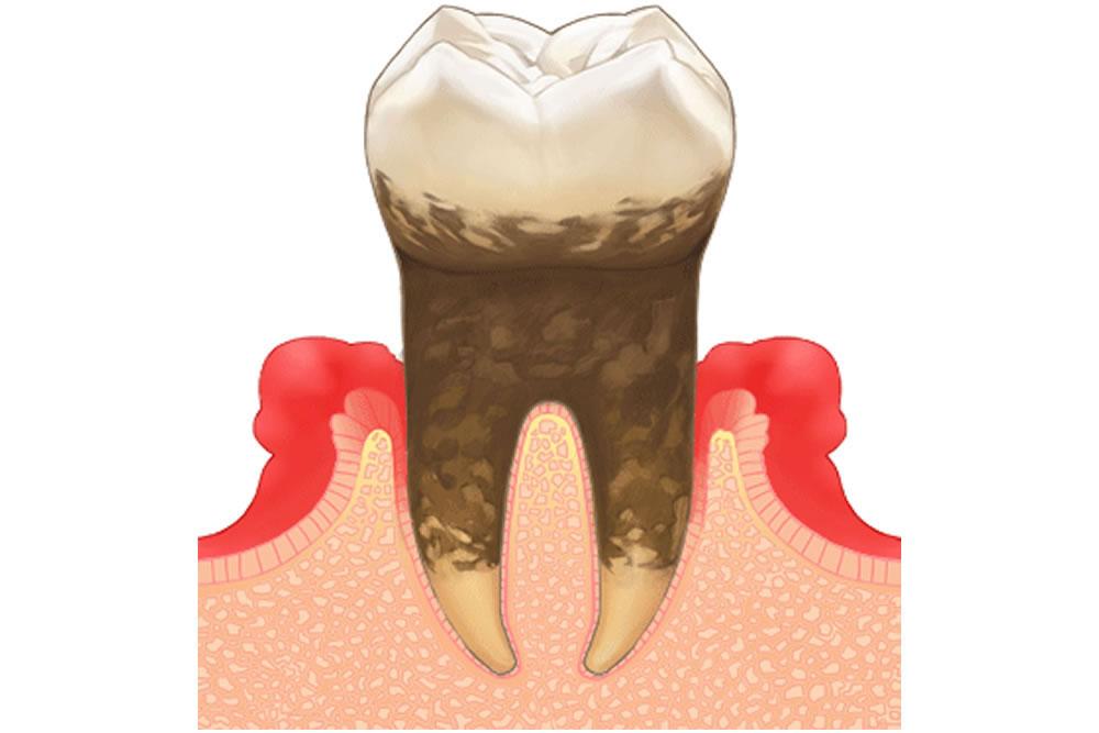 歯茎の炎症・歯周病