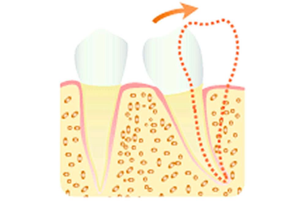 歯牙の傾斜を改善