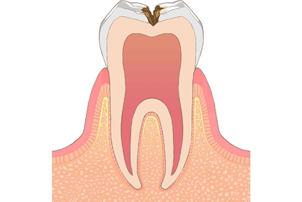 虫歯リスク